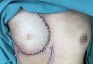 Phẫu thuật tái tạo vú bằng vạt da cơ ngang bụng