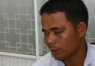 Túng quẫn, gã thợ hồ tống tiền, dọa tạt a-xít bạn gái quen qua Zalo