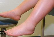 Phù chân ở người cao tuổi có đáng ngại?
