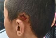 Thầy giáo đẩy học sinh ngã rách đầu vì nói chuyện riêng