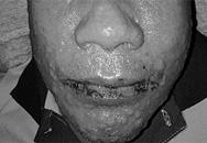 Người đàn ông trợt hết da, tổn thương sinh dục, phải cách ly dài ngày sau khi uống thuốc trị gout