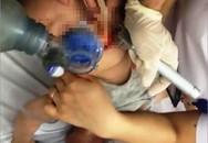 Bé 21 tháng tuổi ngừng thở vì hóc thạch rau câu: Nếu cứ loay hoay lấy thạch ra thì có thể đã tử vong