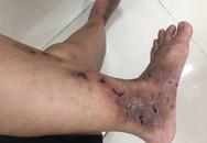 Những ai dễ gặp căn bệnh có nguy cơ bị cắt cụt chi, tháo khớp chi do hoại tử?
