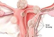 """Phụ nữ nên tránh 7 loại thực phẩm hại tử cung, ăn vào chẳng khác gì """"nuôi"""" khối u"""