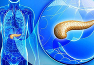 Tầm soát ung thư tụy ở người đái tháo đường