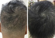 """Phương pháp """"thần kỳ"""" giúp tóc mọc dày gấp đôi tại bệnh viện Quốc tế DNA"""