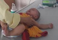 Bé gái 6 tháng tuổi ở Quảng Bình phải cắt bỏ buồng trứng