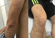 Bỗng nhiên nổi dày đặc nốt trên da, sụt cân không phanh, phát hiện u phát ban