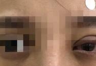 Nhấn mí ở tiệm spa, cô gái hốt hoảng vì mắt mờ dần
