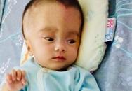 Triệu Hoài An - bé gái chiến đấu với căn bệnh não nước bằng tất cả sự lạc quan đã ra đi mãi mãi