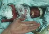 'Cuộc chiến' 200 ngày giành sự sống của em bé nặng 370 gram
