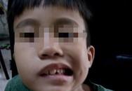 Ngủ dậy, bé trai 8 tuổi hốt hoảng vì bị lệch mặt, méo miệng, mắt không thể nhắm kín