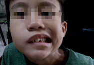 Từ vụ bé trai bị lệch mặt, méo miệng sau khi ngủ dậy đến nguy hiểm khi bố mẹ cho con nằm điều hòa cả đêm