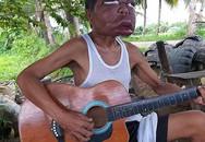 Người đàn ông Philippines có gương mặt sưng to gấp ba lần vì bệnh lạ