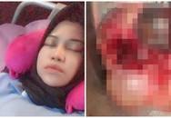 Cô gái có 2 khối u quái ở buồng trứng vì thích ăn loại thực phẩm nhiều người cũng mê