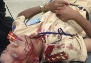 Đại úy CSGT bị người vi phạm luật dùng đá đánh nhập viện