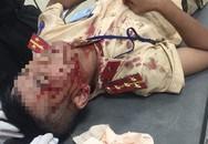 Diễn biến mới vụ Đại úy CSGT bị người vi phạm luật dùng đá đánh nhập viện