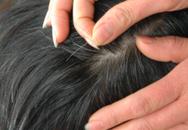 Bác sĩ da liễu tiết lộ nguyên nhân bất ngờ khiến trẻ con bị tóc bạc sớm