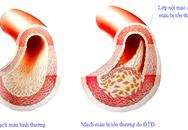 Bệnh của mạch máu có liên quan đến tai