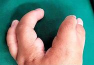 Giải thoát bé trai 2 tuổi khỏi đôi tay càng tôm hùm