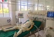 Nạn nhân vụ đổ xăng thiêu sống cả nhà người tình ở Sơn La vẫn rất nguy kịch