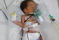 Bé trai sinh non 1,6kg bị teo ruột bẩm sinh được gây mê, phẫu thuật thành công
