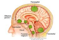 Những dấu hiệu u não hay gặp, điều thứ 3 nhiều người mắc mà không biết