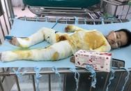 Xót xa bé trai 2 tuổi bị bỏng toàn thân do ngã vào nồi nước nóng