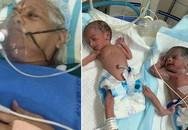Cụ bà 73 tuổi sinh đôi 2 bé gái: Kỳ diệu thật nhưng hãy nghe những lời này của bác sĩ sản!