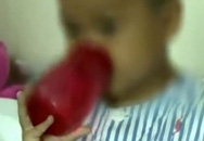 Con trai 5 tuổi có dấu hiệu run tay, mẹ sốc khi bác sĩ lấy ra khối u có đủ răng lẫn tóc trong não bé