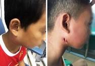 """3 trẻ mắc vi khuẩn """"ăn thịt người"""" ở Nghệ An: Bác bỏ khả năng thành dịch bệnh"""