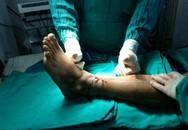 'Cậu nhỏ' và các phần cơ thể bị đứt rời: Phải bảo quản cách này thì bác sĩ mới nhất định cứu được