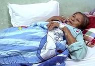 Nhiều người nhập viện khẩn cấp vì bị ong vò vẽ dồn dập tấn công