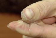 Lỡ bị keo 502 dính vào tay bạn đừng vội kéo ra mà rách da, đây là cách khiến keo bong cực nhanh mà lại không đau