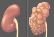 Bé trai 4 tháng có quả thận như chùm nho vì mắc bệnh từ trong bụng mẹ