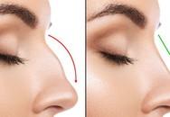 Tiêm chất làm đầy để nâng mũi, vừa kết thúc thủ thuật cô gái 19 tuổi lập tức bị mù 1 bên mắt