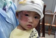 Khuôn mặt xinh xắn của cô bé dân tộc Vừ Thị Kê đang dần phục hồi sau bỏng nặng