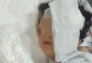 Bé gái có khuôn mặt biến dạng được đoàn bác sĩ Anh phẫu thuật miễn phí ở Hà Nội