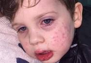 Bé trai 3 tuổi nhiễm virus bệnh tình dục sau nụ hôn vào má