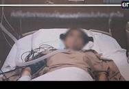 Phẫu thuật gọt cằm và cắt mí, cô gái trẻ hôn mê 5 tháng chưa tỉnh