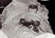 Câu chuyện cảm động đầy bất ngờ đằng sau bức ảnh bác sĩ tự mổ bụng chính mình