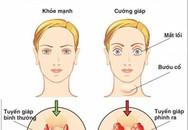 11 biến chứng suy tuyến giáp nguy hiểm khôn lường cần biết