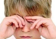 Bác sĩ gắp con vắt trong mắt bệnh nhi