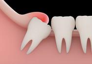 Khi nào nên nhổ răng khôn?