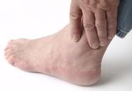 Dấu hiệu của bệnh gout