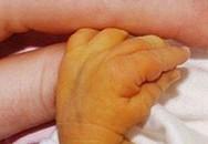 Trẻ 7 ngày tuổi phải thay máu vì sự chủ quan của cha mẹ