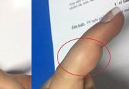 Bị sưng đau ngón tay, người phụ nữ không ngờ mang khối u ở vị trí cực hiếm gặp