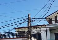 Đứng ở tầng 2, nam sinh lớp 7 bị dây điện trần phóng điện làm cụt 2 cánh tay