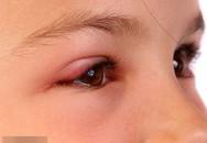 Nổi mụn lẹo và viêm mi mắt
