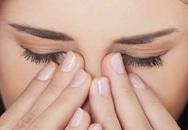 Ðau hốc mắt có phải bệnh mắt?